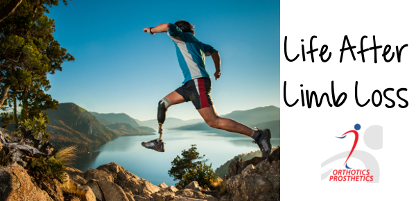 Life after limb loss is challenging, but these tips can help you learn to enjoy life after limb loss.